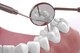 Cum sa tratam durerea de dinti